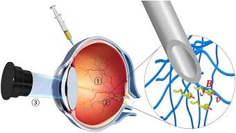 Watch: Nanobots Designed to Propel Through the Eye