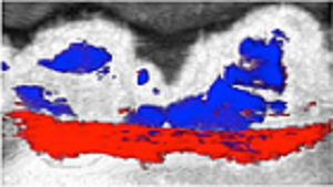 Photoacoustic/ultrasound image after squid ink oral rinse treatment. Ultrasound image of the teeth is in black and white. The photoacoustic signal from the squid ink contrast agent in the pocket depth is in red and signals from stains on the teeth are in blue. (Image courtesy of Jokerst Bioimaging Lab at UC San Diego)