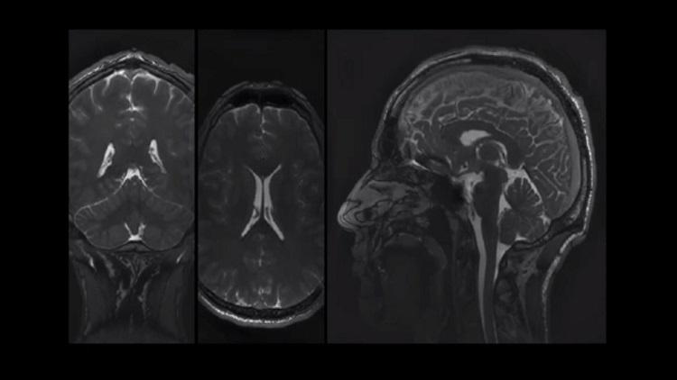 Watch a new imaging technique capture brain movement